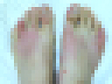 足の甲です。画像処理済。